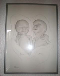 Disse to yndige tvillingepiger Alberte og Mathilde blev født i 24 uge og klarede ikke livet.